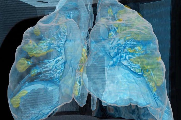 [Vidéo]: l'hôpital universitaire de George-Washington et Surgical Theater dévoilent l'impact du Covid-19 sur les poumons